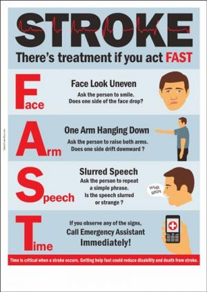 Act_FAST